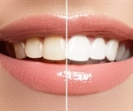 Why your dentist might seem pushy