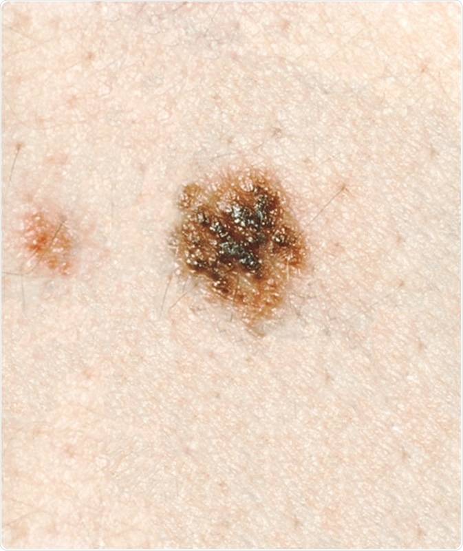 Dysplastic Nevi - This lesion has a dark brown,