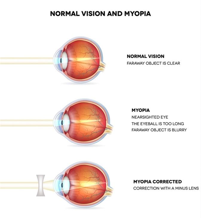 Miopía y visión normal. La miopía está siendo miope. Miopía corregida con la lente menos. Anatomía del aro, corte transversal. Haber de imagen: Tefi/Shutterstock