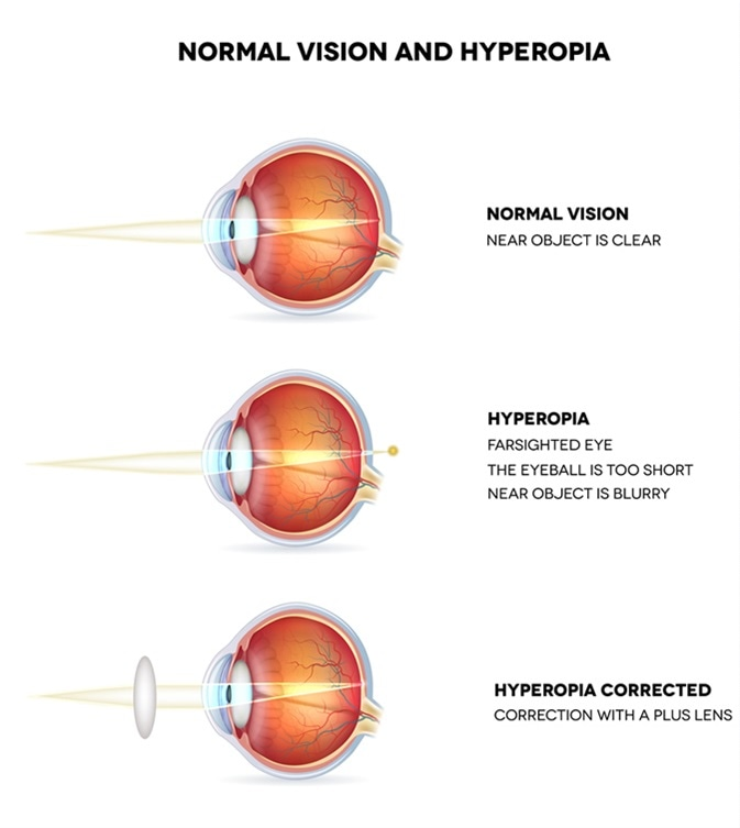 Hyperopia and normal vision. Hyperopia is being farsighted. Illustration shows hyperopia corrected with a plus lens. Anatomy of the eye, cross section. Detailed illustration. Image Credit: tefi / Shutterstock