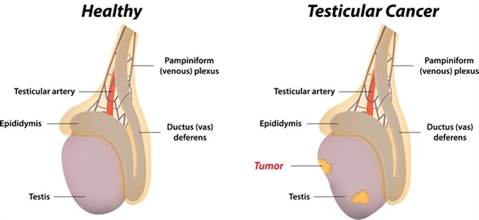 Testicular Cancer - Image Credit: joshya / Shutterstock