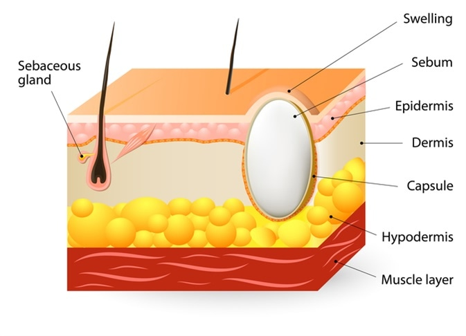 Sebaceous cysts or trichilemmal cyst. Schematic illustration of a segment of skin with Sebaceous cyst - Image Credit: Designua / Shutterstock