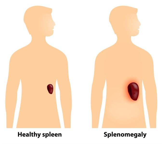 Splenomegaly is an enlargement of the spleen. Image Credit: Designua  / Shutterstock