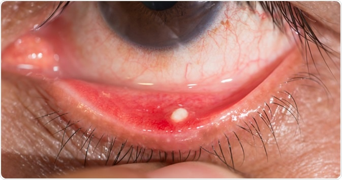 Close up of the chronic conjunctivitis with concretion during eye examination. Image Credit: ARZTSAMUI / Shutterstock