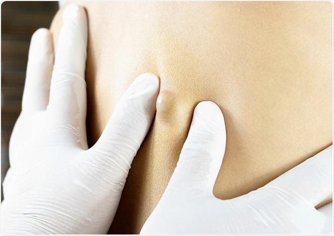 Sebaceous Cyst on Woman