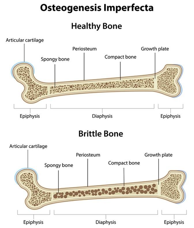 Osteogenesis Imperfecta - Image Credit: joshya / Shutterstock