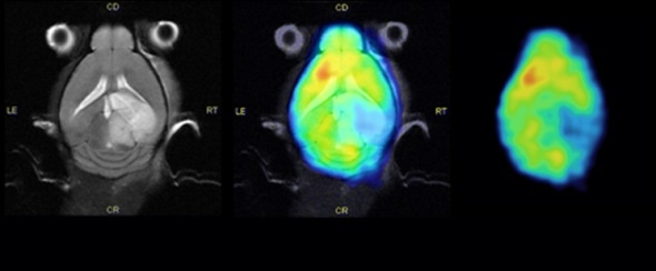 Brain stroke model. Left to right: MRI (RARE), PET/MR overlay, 18F-DFG PET images.