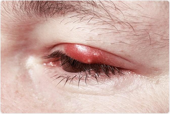 Blepharitis Inflammation - Image Credit: Gromovataya / Shutterstock
