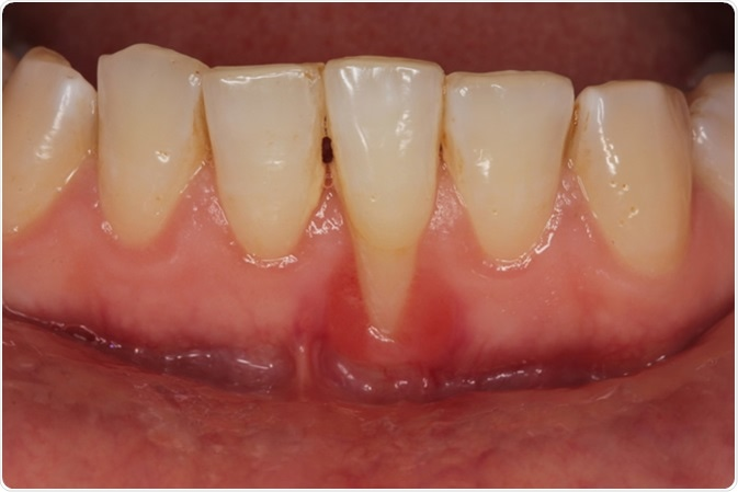 Gingival recession due to dental calculus. Image Credit: dr.kenan / Shutterstock