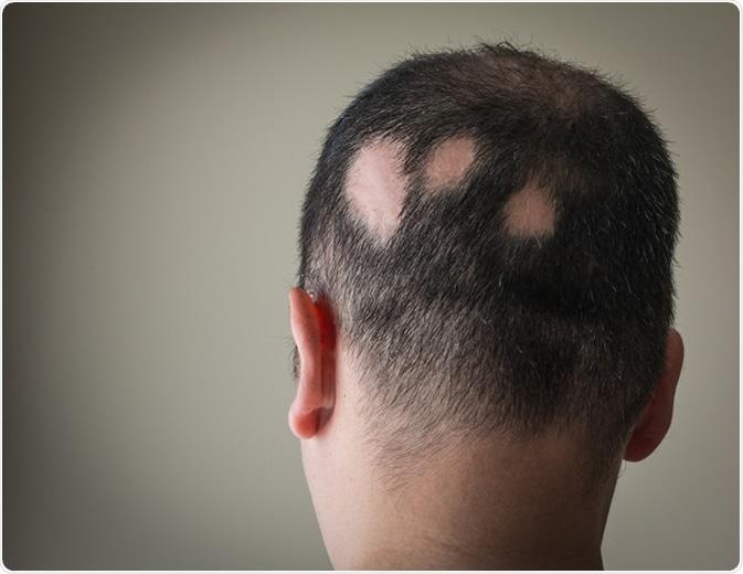 Alopecia Aerata - Image Credit: Alex Papp / Shutterstock