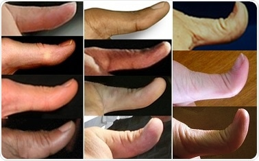 Thumbs ranging from straight to hitchhiker. Image Credit: Myths of Human GeneticsJohn H. McDonald, University of Delaware