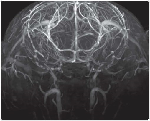 Time-of-flight angiography with no contrast agent at high spatial resolution showing excellent contrast enabling the identification of fine vascular structures