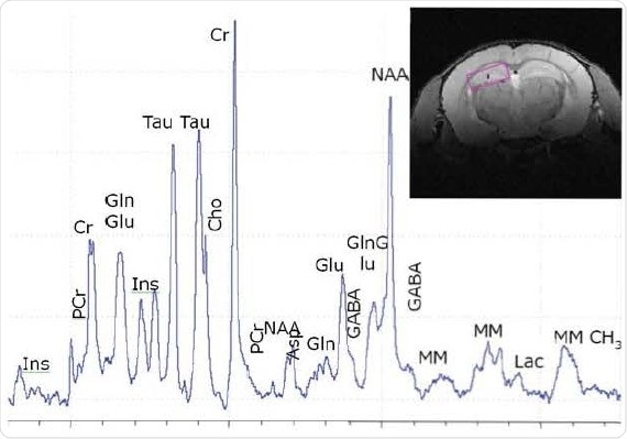 Localized 1H spectroscopy in mouse brain at 11.7 T in a 2.7µl voxel