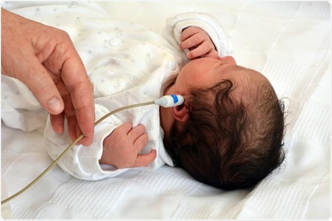 Newborn hearing screening. Image Credit: ChameleonsEye / Shutterstock