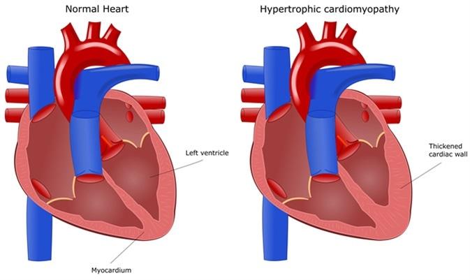 Heart disease: hypertrophic cardiomyopathy. Image Credit: ellepigrafica / Shutterstock