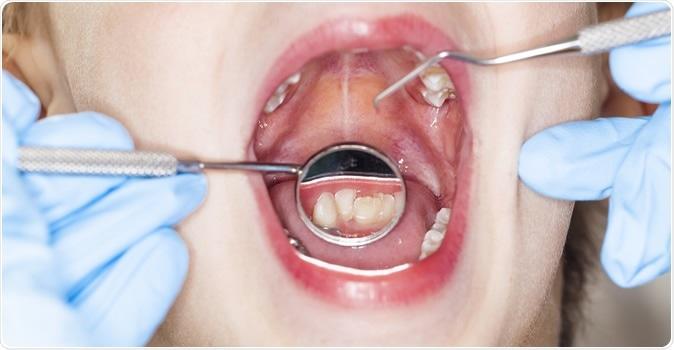 Inspection of the oral cavity dental dentist. Image Credit: Oleg Malyshev / Shutterstock