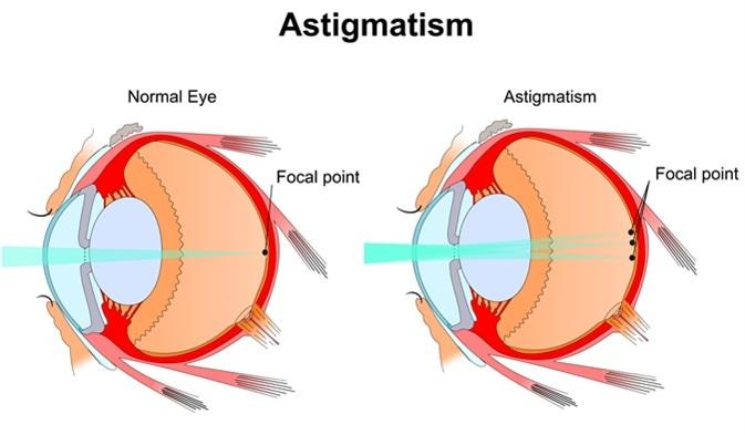 esența problemei din punct de vedere picaturi pentru ochi cu antibiotic