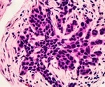 Immune 'hotspots' could help predict the risk of breast cancer relapse in patients, study finds