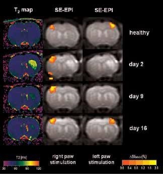 BOLD activation at 7.0 Tesla on animals after stroke, with a resolution of 400 x 400 x 2000 μm3. T2-maps (left column) indicate the lesion on the right hemisphere. BOLD activation on the left healthy hemisphere (center column) and of the ischemic right hemisphere (right column) indicates transient loss of activation during the first two weeks following stroke, followed by full recovery at day 16.