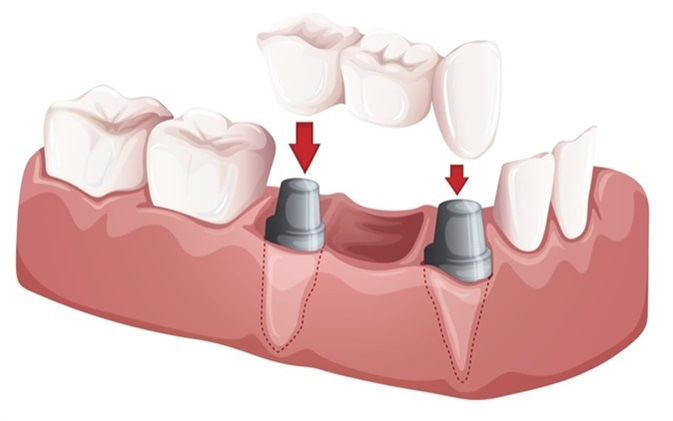 Illustration of a dental bridge. Image Credit: BlueRingMedia / Shutterstock