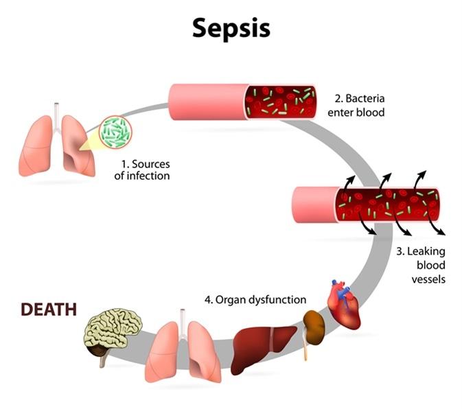 Efectos de la sepsia. Presencia de bacterias numerosas en la sangre, causas la carrocería a responder en la disfunción del órgano. Haber de imagen: Designua/Shutterstock