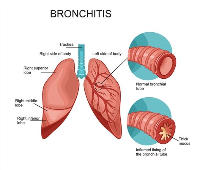 Bronchitis. Image Credit: logika600 / Shutterstock