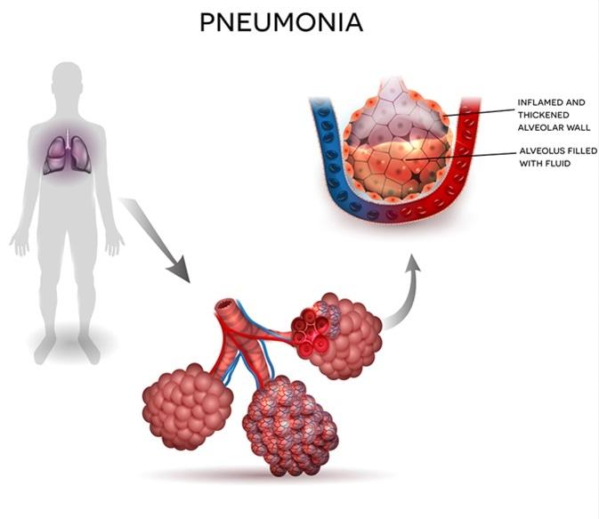 Illustration de pneumonie, silhouette humaine avec des poumons, fin des alvéoles et alvéoles enflammés avec du liquide à l