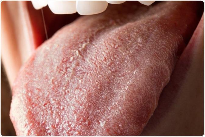 Língua com infecção dos albicans da candida. Crédito de imagem: sruilk/Shutterstock