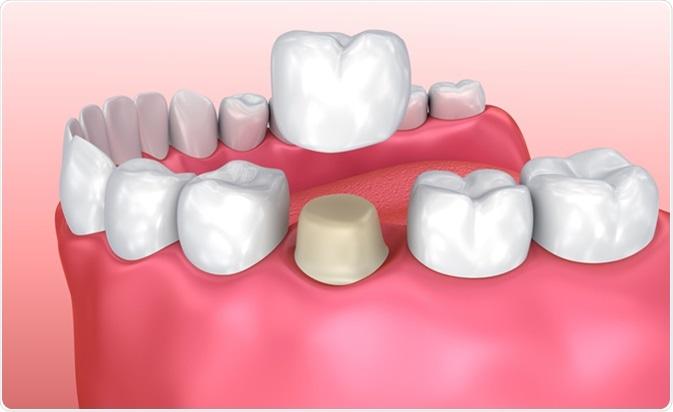 Dental crown installation process. Image Credit: Alex Mit / Shutterstock