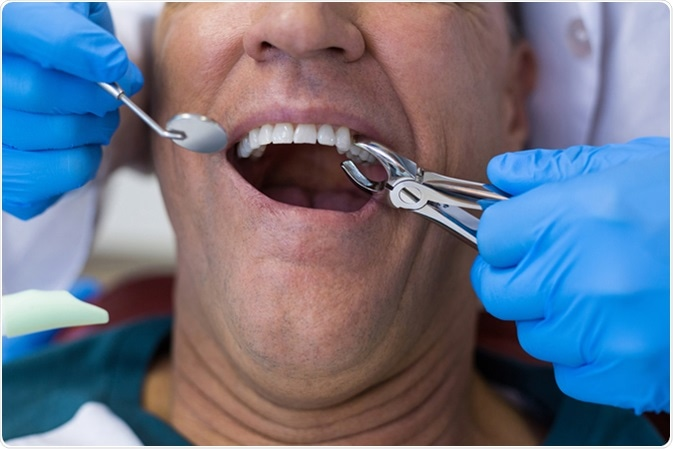 Dentist using surgical pliers to remove a decaying tooth in clinic. Image Credit: Wavebreakmedia / Shutterstock