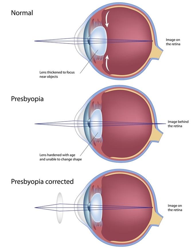 Presbiopia di stato di occhio. Credito di immagine: Media medici/Shutterstock di Alila
