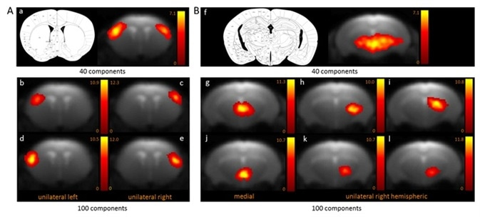 BOLD resting-state fMRI based cortical (A) and thalamic (B) mouse brain functional connectivity clusters, comparatively revealed by 40- (a, f) and 100-ICASSO (b–e and g–l). All images represent spatial color-coded z-maps of the independent components.