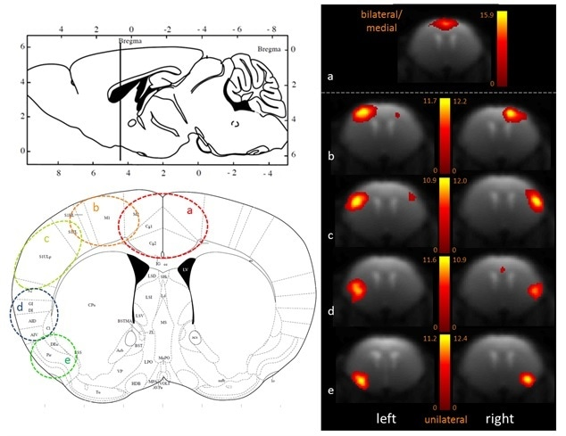 Fine-grained segregation of the cortical mouse brain functional connectivity revealed with 100-ICASSO. Bi- (a) and uni-lateral left and right ICs (b–e), matching well defined anatomical areas (see he atlas axial image - Paxinos and Franklin, 2001) are displayed.