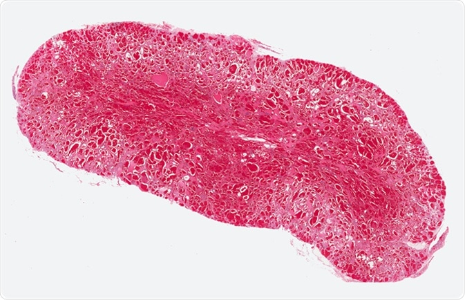 Angioma or hemangioma a vascular tumor composed of small blood vessels lined by endothelial cells. Cavernous angioma. Image Credit: Shutterstock