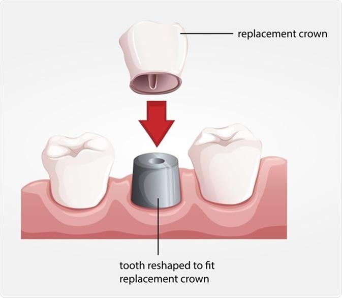 Illustration of a dental crown procedure. Image Credit: BlueRingMedia / Shutterstock