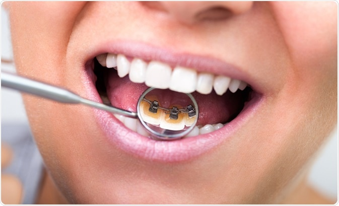 Lingual braces on dental mirror. Image Credit: Lucky Business / Shutterstock