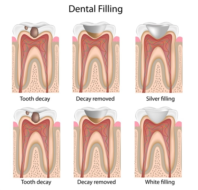Dental fillings. Image Credit: Alila Medical Media / Shutterstock