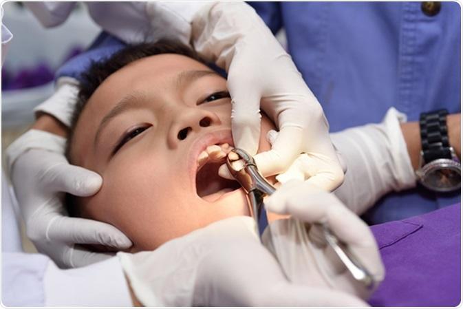 Muchacho joven durante la extracción dental. Haber de imagen: ARZTSAMUI/Shutterstock