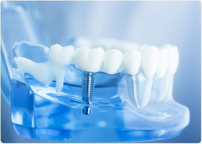 Dental implant. Image Credit: edwardolive / Shutterstock