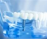 Medical Uses of Dental Implants