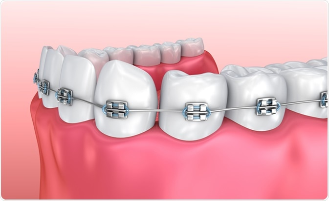 Teeth with braces isolated on white. Medically accurate 3D illustration. Image Credit: Alex Mit / Shutterstock