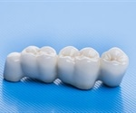 Care for Dental Bridges