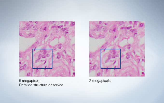 5megapixel High-definition CCD