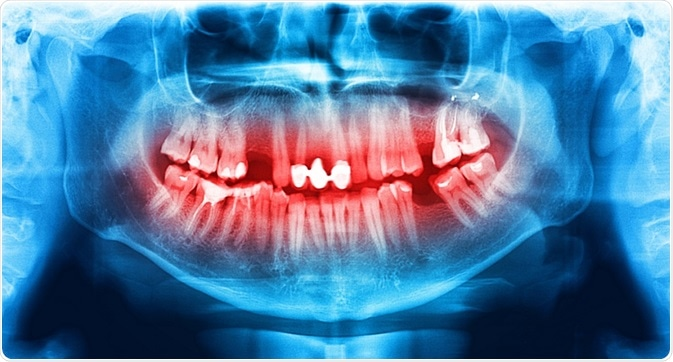 x-ray dentistry