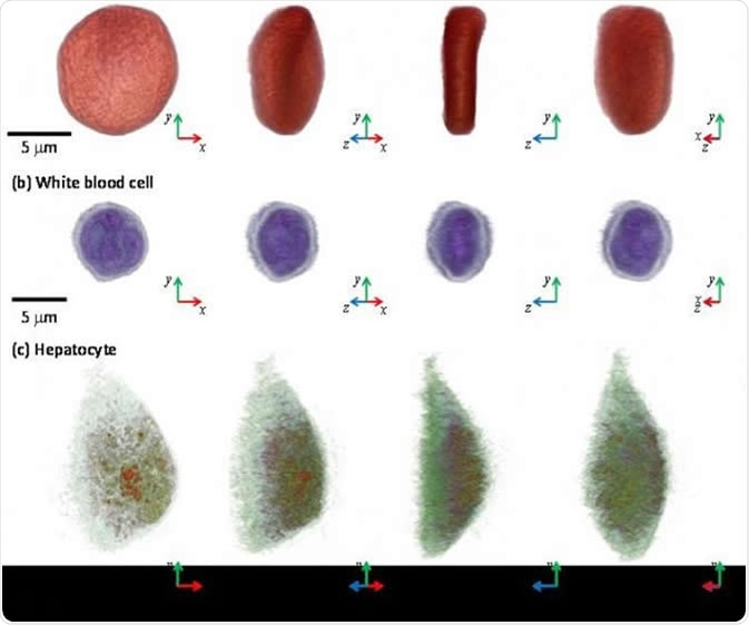 3-D images of a red blood cell, white blood cell, and hepatocyte via microscopic tool, the holotomography (HT)-1, TomoCube. IMAGE CREDIT: KAIST