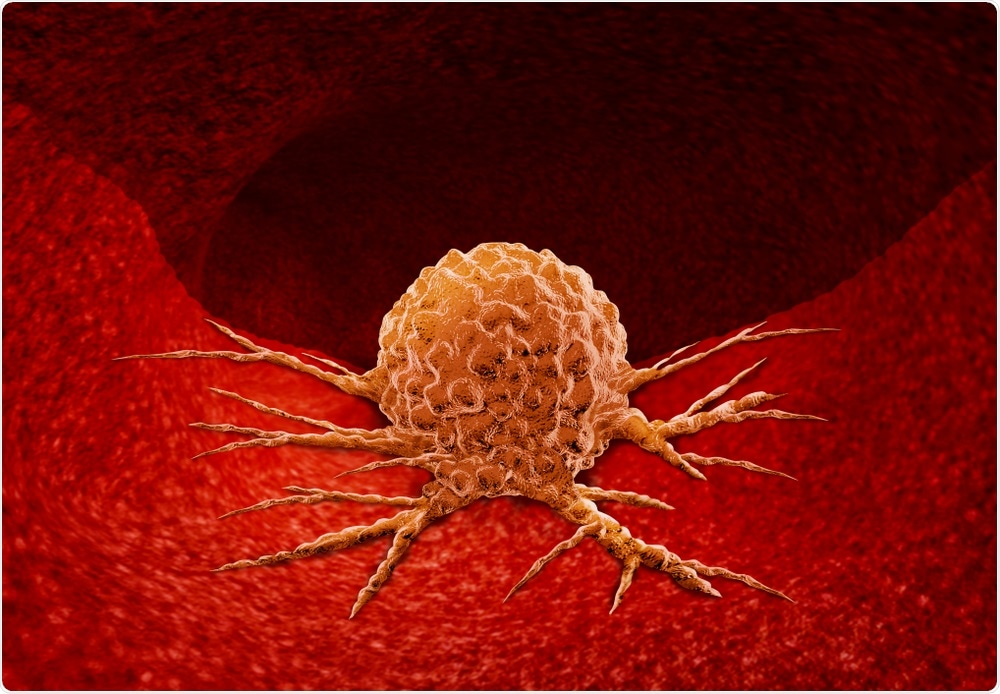Cancer cell. Lightspring - Shutterstock