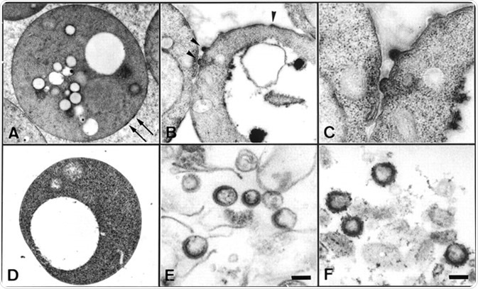 Electron microscopic examination of yeast spheroplasts expressing HIV Gag protein and VLPs purified from the culture medium. (A–C) Yeast spheroplasts expressing Gag protein. Image Credit: PNAS