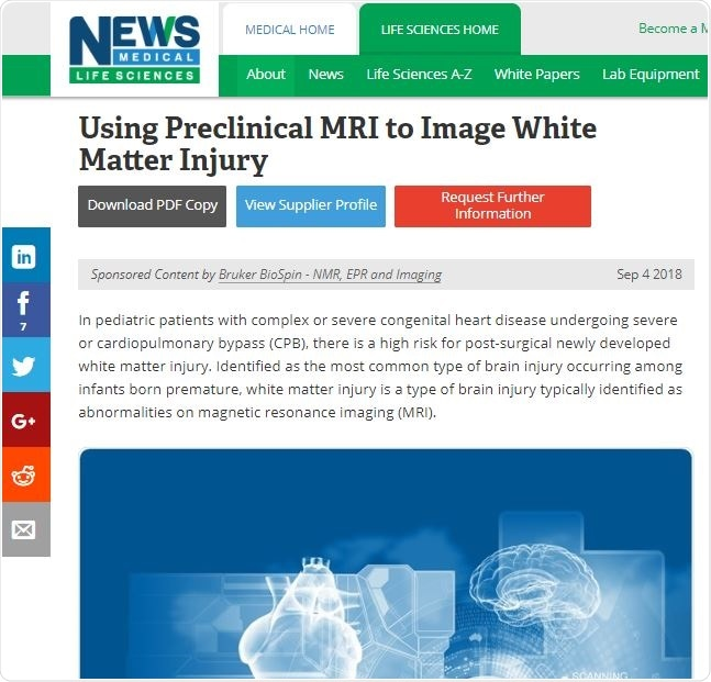White Matter Injury Article Example