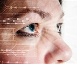 'Eye scan' shows promise to diagnose central nervous system disorders