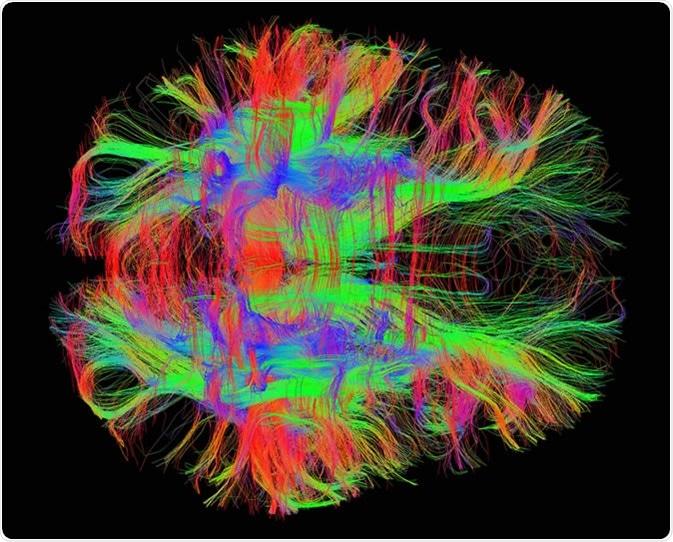 White matter fiber tracts in the adult human brain. Image Credit: Zeynep Saygin, mcgovern.mit.edu